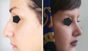 جراحی زیبائی بینی
