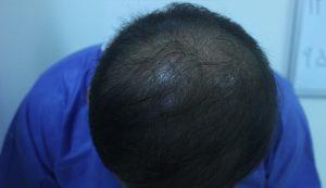کاشت مو به روش SFIT