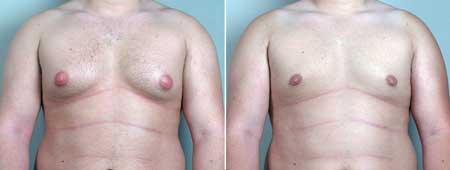 Gynecomastia2