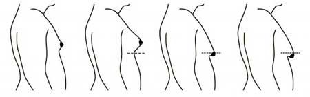 Gynecomastia4